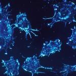 Tumores Cerebrales y los Cannabinoides
