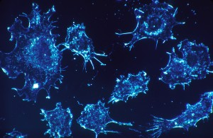 foto de cancer neuronal